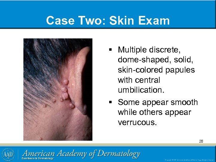 Case Two: Skin Exam § Multiple discrete, dome-shaped, solid, skin-colored papules with central umbilication.
