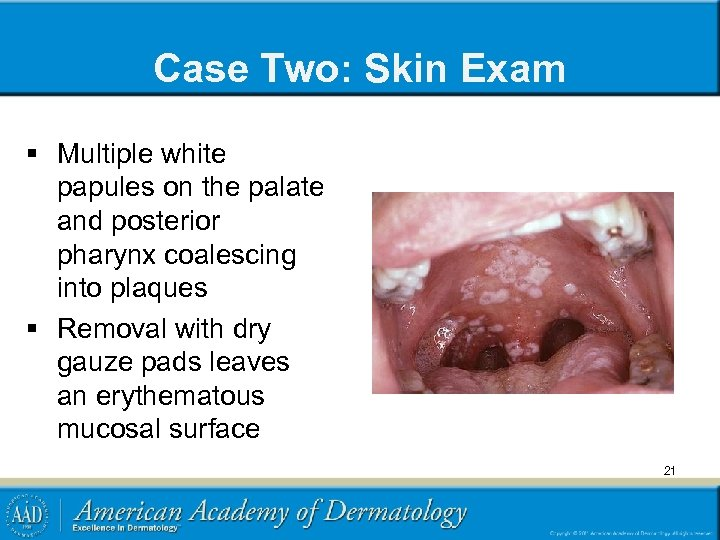 Case Two: Skin Exam § Multiple white papules on the palate and posterior pharynx