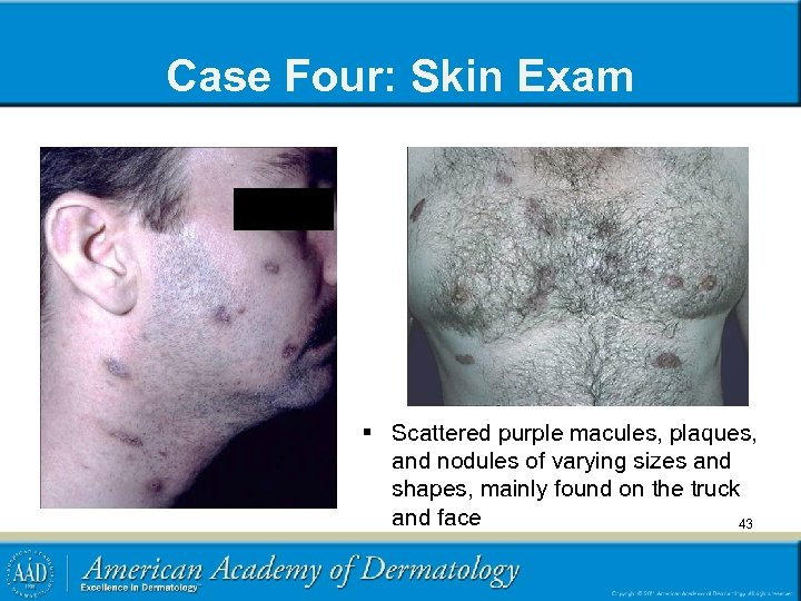 Case Four: Skin Exam § Scattered purple macules, plaques, and nodules of varying sizes