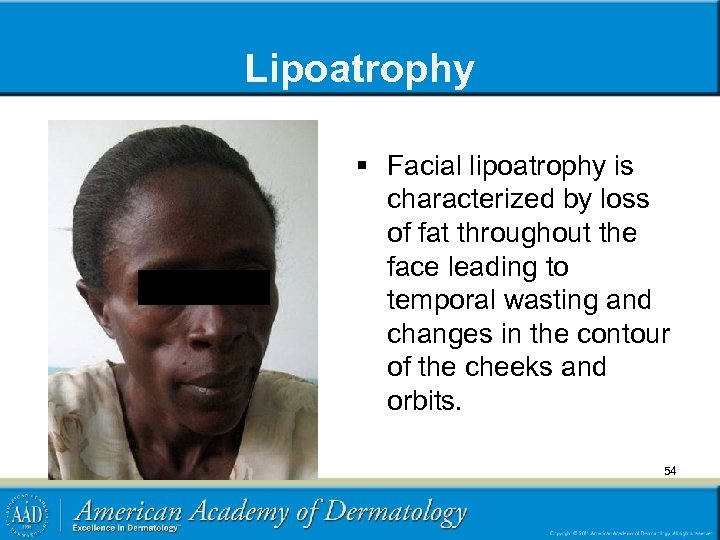 Lipoatrophy § Facial lipoatrophy is characterized by loss of fat throughout the face leading