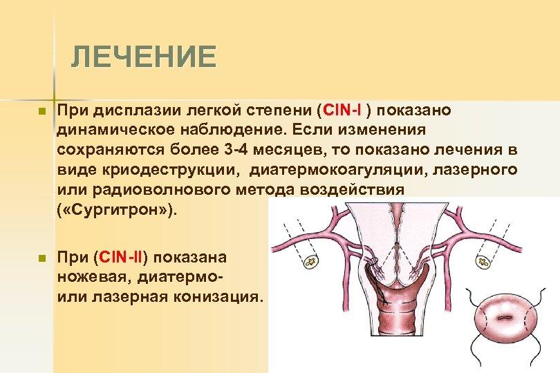Подагра и артроз лечение