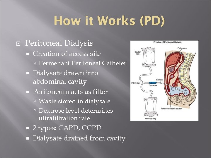 How it Works (PD) Peritoneal Dialysis Creation of access site Permenant Peritoneal Catheter Dialysate