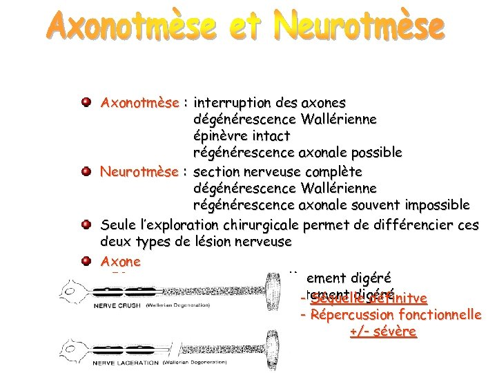 Axonotmèse : interruption des axones dégénérescence Wallérienne épinèvre intact régénérescence axonale possible Neurotmèse :