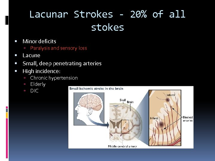Lacunar Strokes - 20% of all stokes Minor deficits Paralysis and sensory loss Lacune