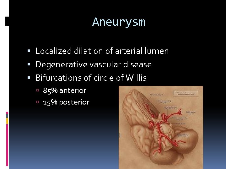 Aneurysm Localized dilation of arterial lumen Degenerative vascular disease Bifurcations of circle of Willis