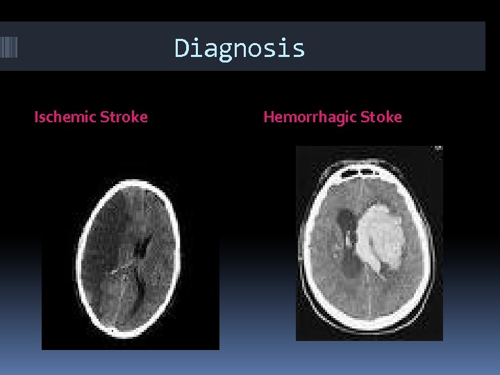 Diagnosis Ischemic Stroke Hemorrhagic Stoke