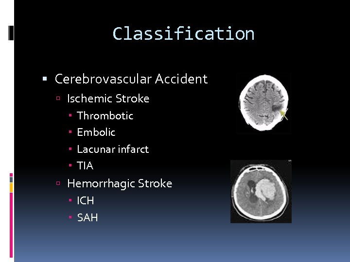 Classification Cerebrovascular Accident Ischemic Stroke Thrombotic Embolic Lacunar infarct TIA Hemorrhagic Stroke ICH SAH