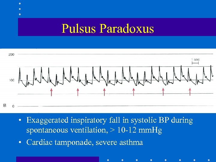 Pulsus Paradoxus • Exaggerated inspiratory fall in systolic BP during spontaneous ventilation, > 10