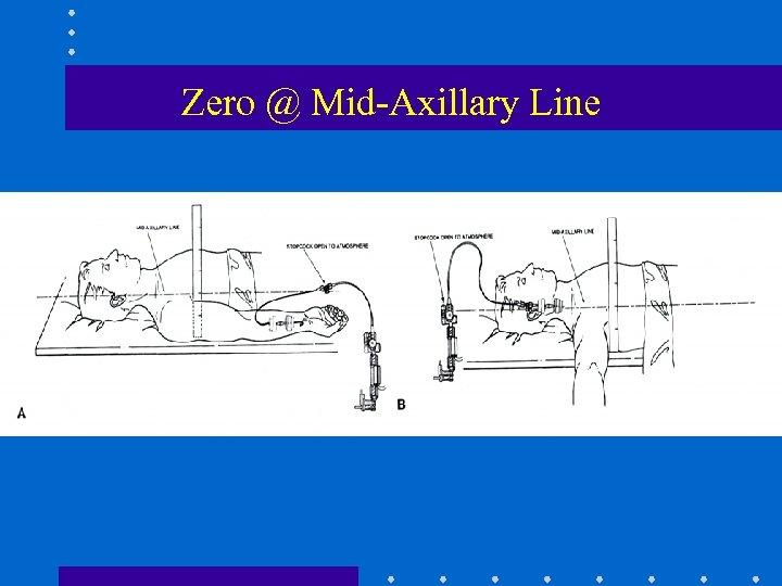 Zero @ Mid-Axillary Line