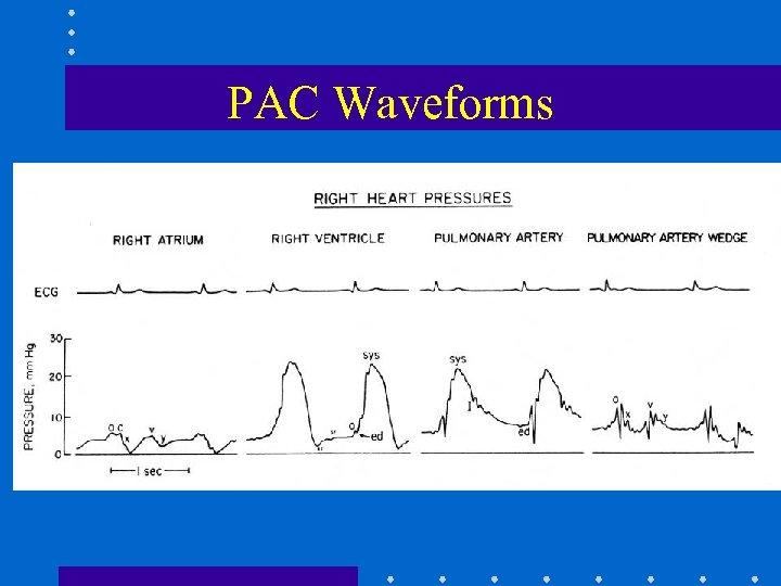 PAC Waveforms