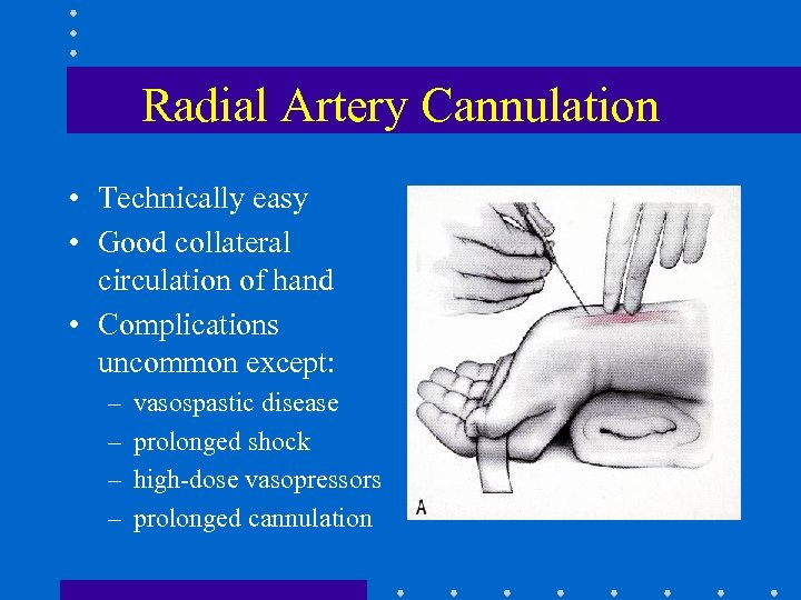 Radial Artery Cannulation • Technically easy • Good collateral circulation of hand • Complications