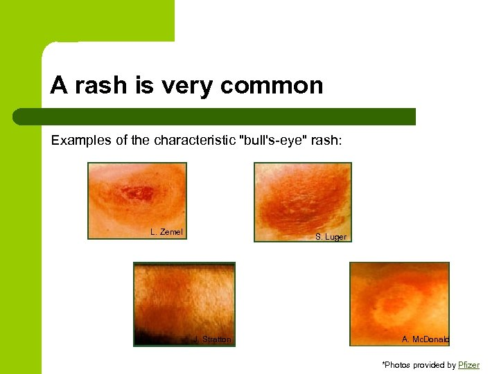A rash is very common Examples of the characteristic