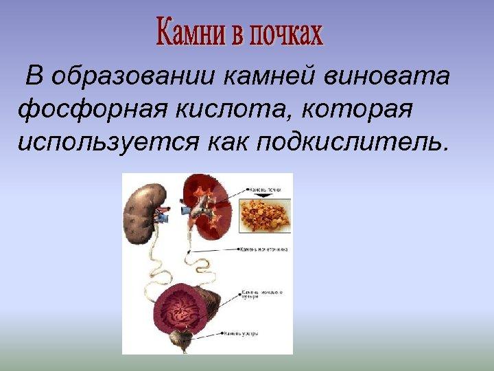 В образовании камней виновата фосфорная кислота, которая используется как подкислитель.
