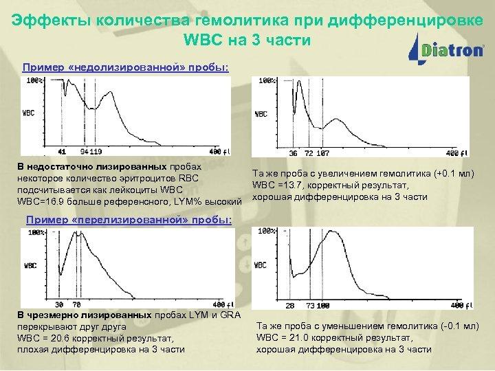 Эффекты количества гемолитика при дифференцировке WBC на 3 части Пример «недолизированной» пробы: (исследование по