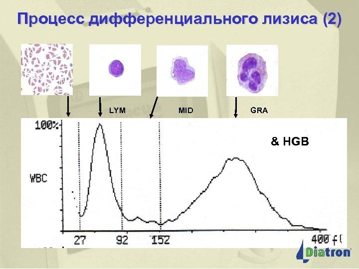 Процесс дифференциального лизиса (2) LYM MID GRA & HGB