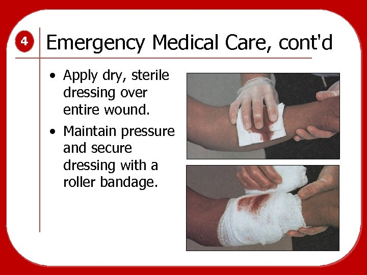4 Emergency Medical Care, cont'd • Apply dry, sterile dressing over entire wound. •
