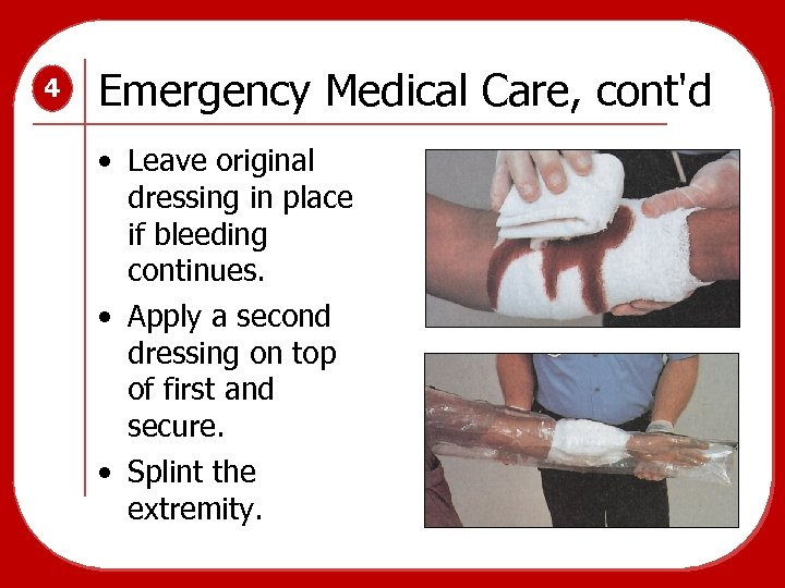 4 Emergency Medical Care, cont'd • Leave original dressing in place if bleeding continues.