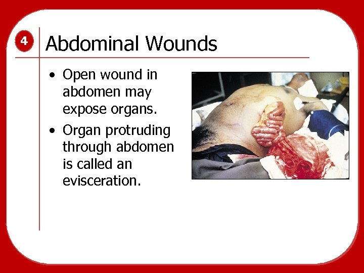 4 Abdominal Wounds • Open wound in abdomen may expose organs. • Organ protruding