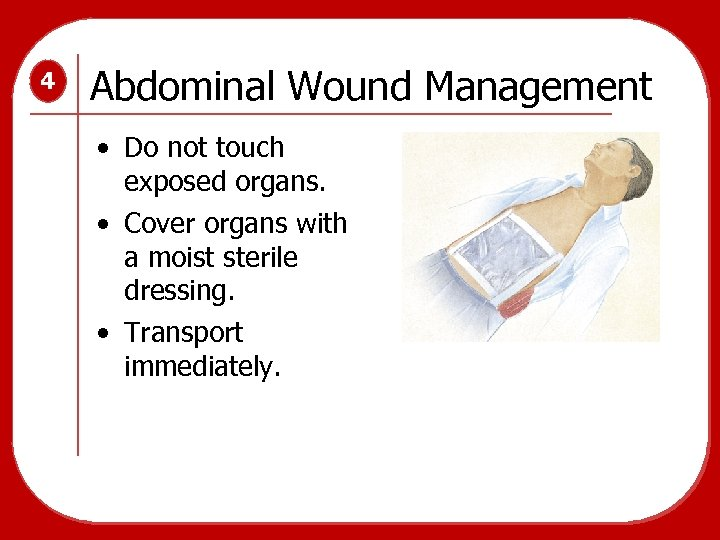 4 Abdominal Wound Management • Do not touch exposed organs. • Cover organs with