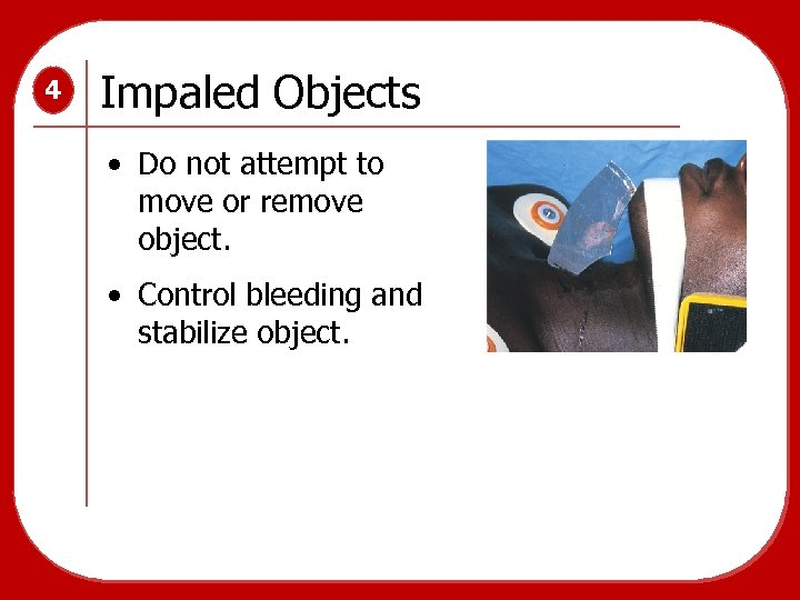 4 Impaled Objects • Do not attempt to move or remove object. • Control