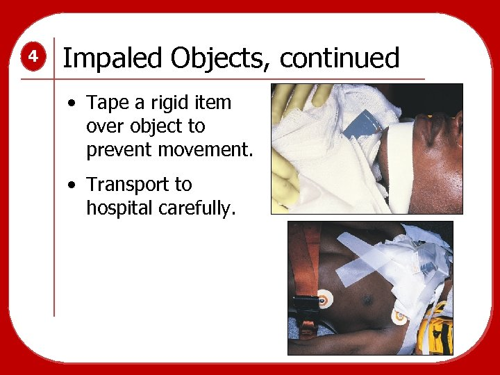 4 Impaled Objects, continued • Tape a rigid item over object to prevent movement.