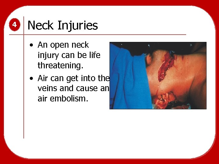 4 Neck Injuries • An open neck injury can be life threatening. • Air