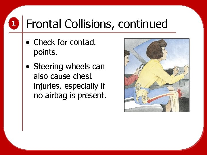 1 Frontal Collisions, continued • Check for contact points. • Steering wheels can also
