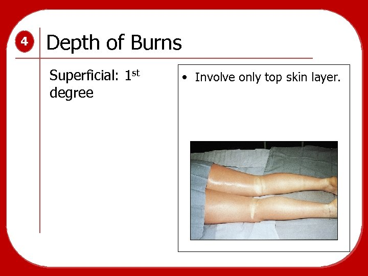 4 Depth of Burns Superficial: 1 st degree • Involve only top skin layer.