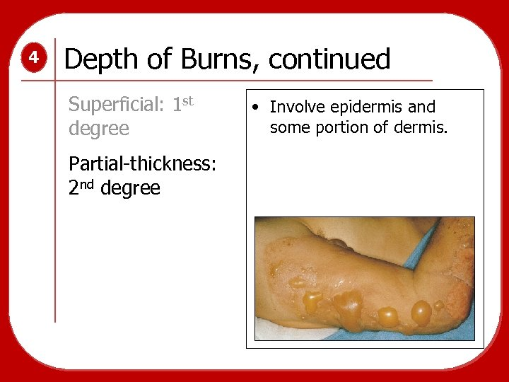 4 Depth of Burns, continued Superficial: 1 st degree Partial-thickness: 2 nd degree •
