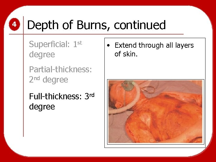 4 Depth of Burns, continued Superficial: 1 st degree Partial-thickness: 2 nd degree Full-thickness: