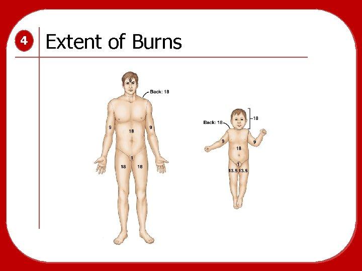 4 Extent of Burns