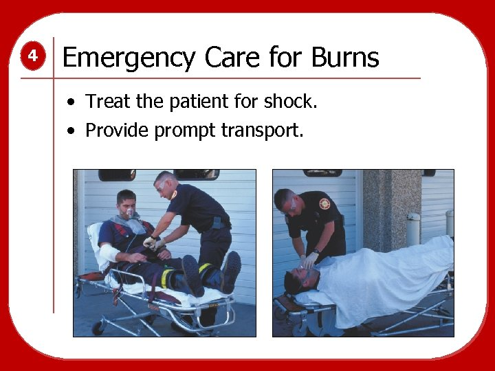 4 Emergency Care for Burns • Treat the patient for shock. • Provide prompt