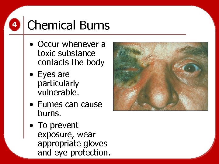 4 Chemical Burns • Occur whenever a toxic substance contacts the body • Eyes