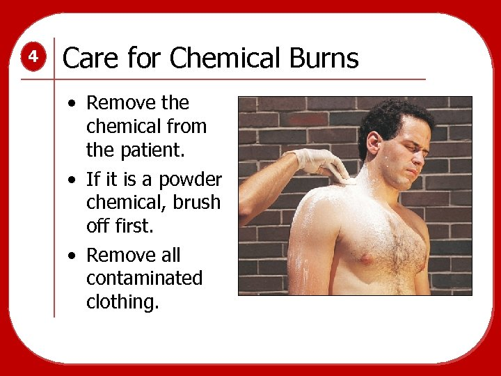 4 Care for Chemical Burns • Remove the chemical from the patient. • If