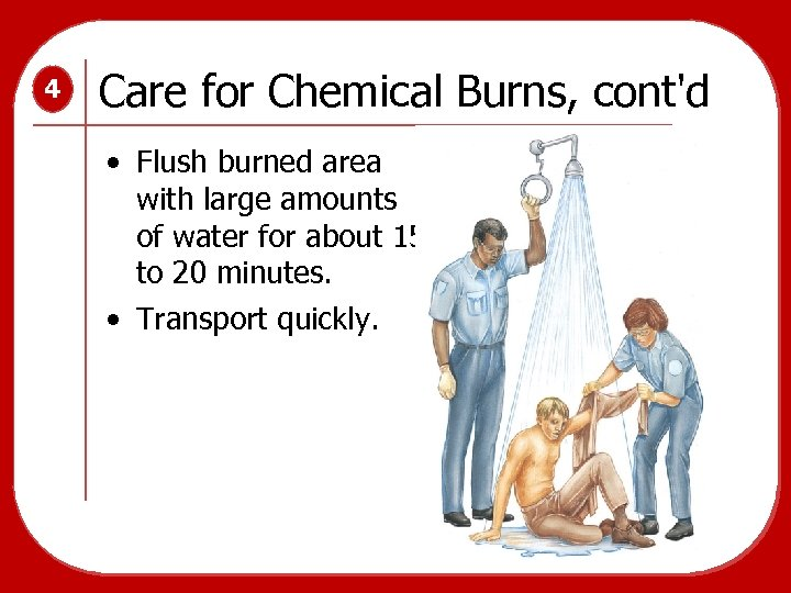 4 Care for Chemical Burns, cont'd • Flush burned area with large amounts of