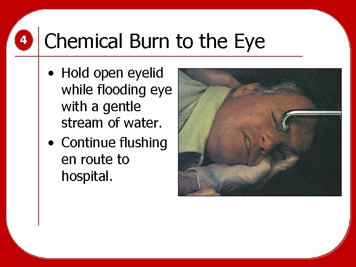 4 Chemical Burn to the Eye • Hold open eyelid while flooding eye with