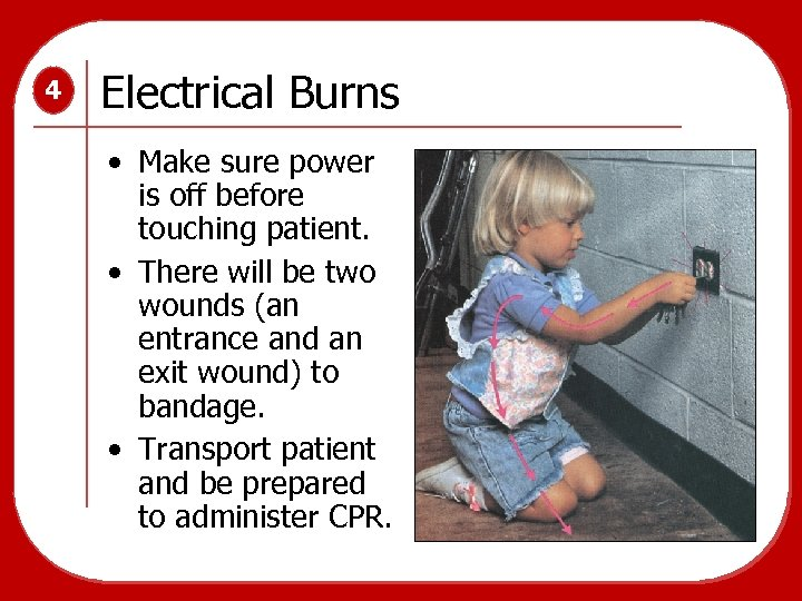 4 Electrical Burns • Make sure power is off before touching patient. • There