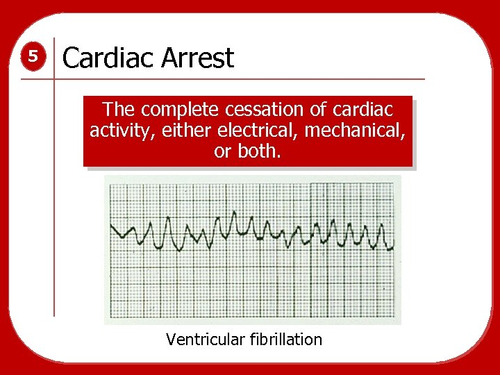 5 Cardiac Arrest The complete cessation of cardiac activity, either electrical, mechanical, or both.