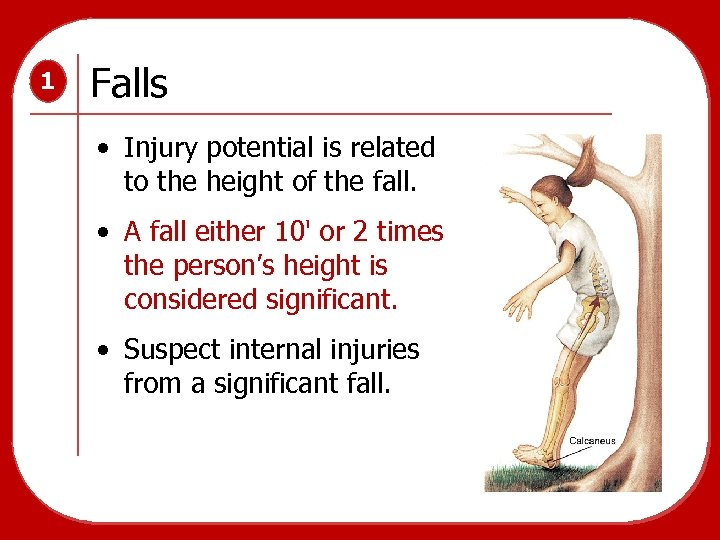 1 Falls • Injury potential is related to the height of the fall. •
