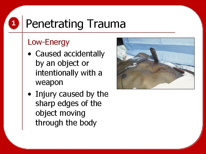 1 Penetrating Trauma Low-Energy • Caused accidentally by an object or intentionally with a