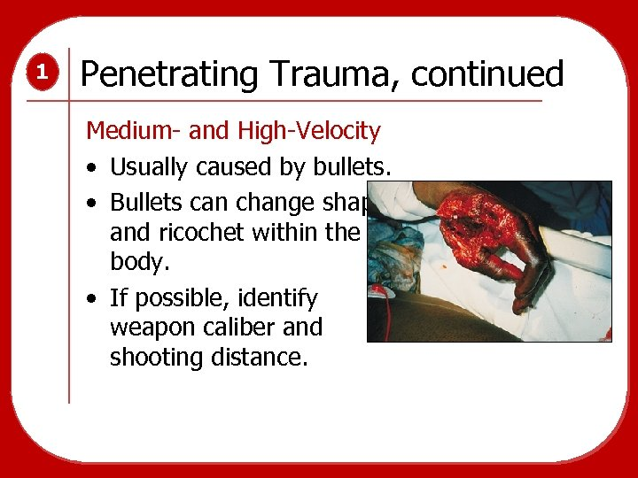 1 Penetrating Trauma, continued Medium- and High-Velocity • Usually caused by bullets. • Bullets