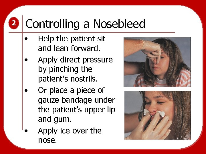 2 Controlling a Nosebleed • • Help the patient sit and lean forward. Apply