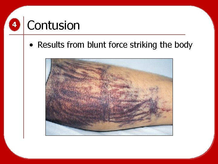 4 Contusion • Results from blunt force striking the body