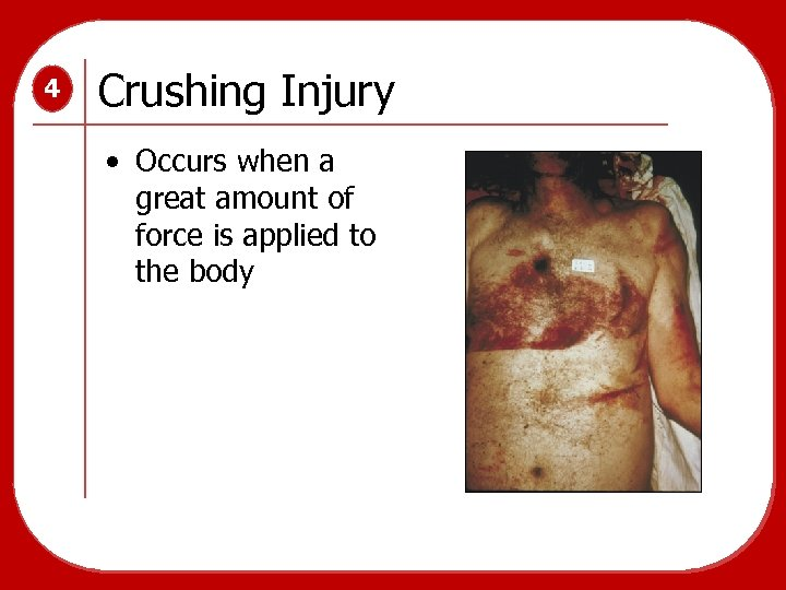 4 Crushing Injury • Occurs when a great amount of force is applied to