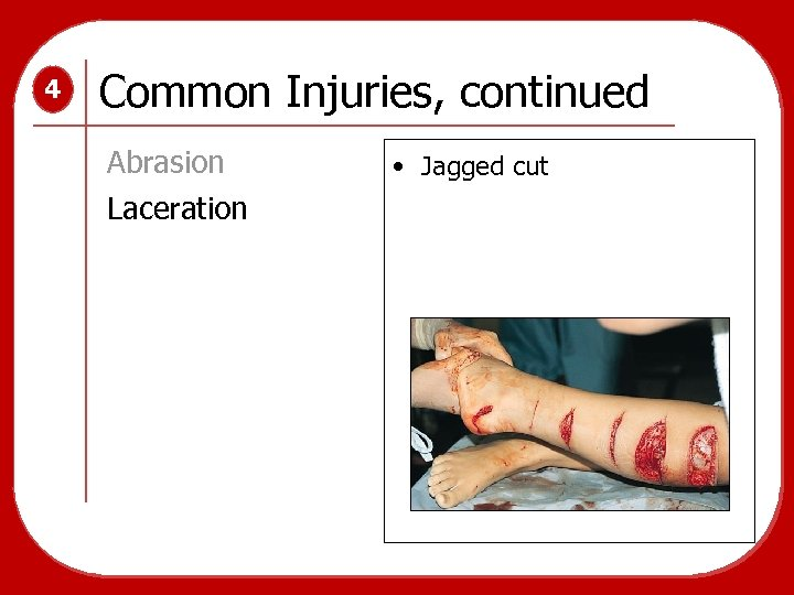 4 Common Injuries, continued Abrasion Laceration • Jagged cut