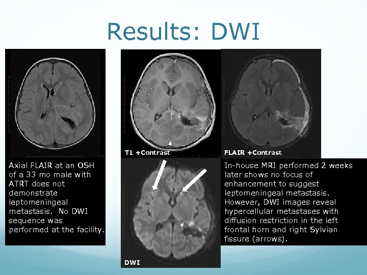 Results: DWI T 1 +Contrast Axial FLAIR at an OSH of a 33 mo