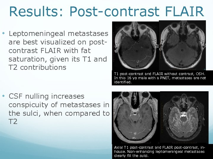 Results: Post-contrast FLAIR • Leptomeningeal metastases are best visualized on postcontrast FLAIR with fat