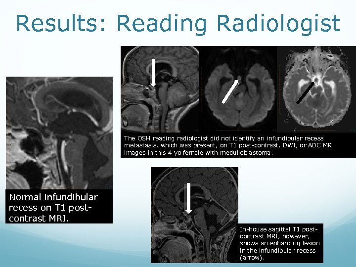 Results: Reading Radiologist The OSH reading radiologist did not identify an infundibular recess metastasis,