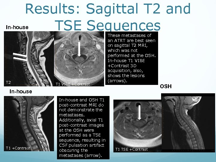 Results: Sagittal T 2 and TSE Sequences In-house T 2 T 1 VIBE +Contrast