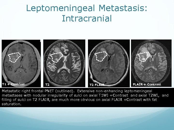 Leptomeningeal Metastasis: Intracranial T 1 + Contrast T 2 FLAIR + Contrast Metastatic right